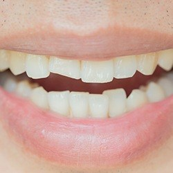 Closeup of smile with cracked tooth