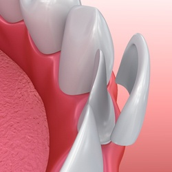 Illustration of porcelain veneer