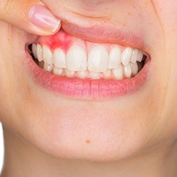 Closeup of smile with damaged gum tissue