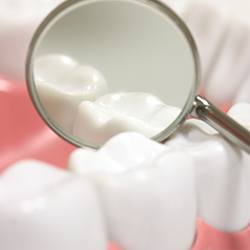 Closeup of tooth after restorative treatment