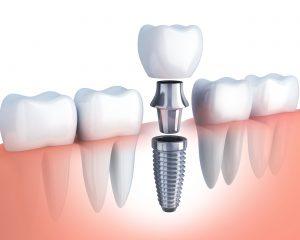 diagram of dental implant